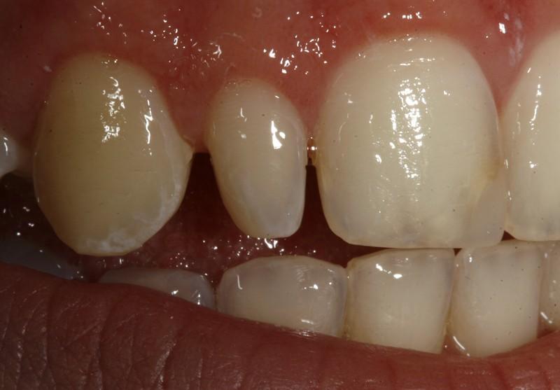 درمان دندانهای لترال میخی شکل