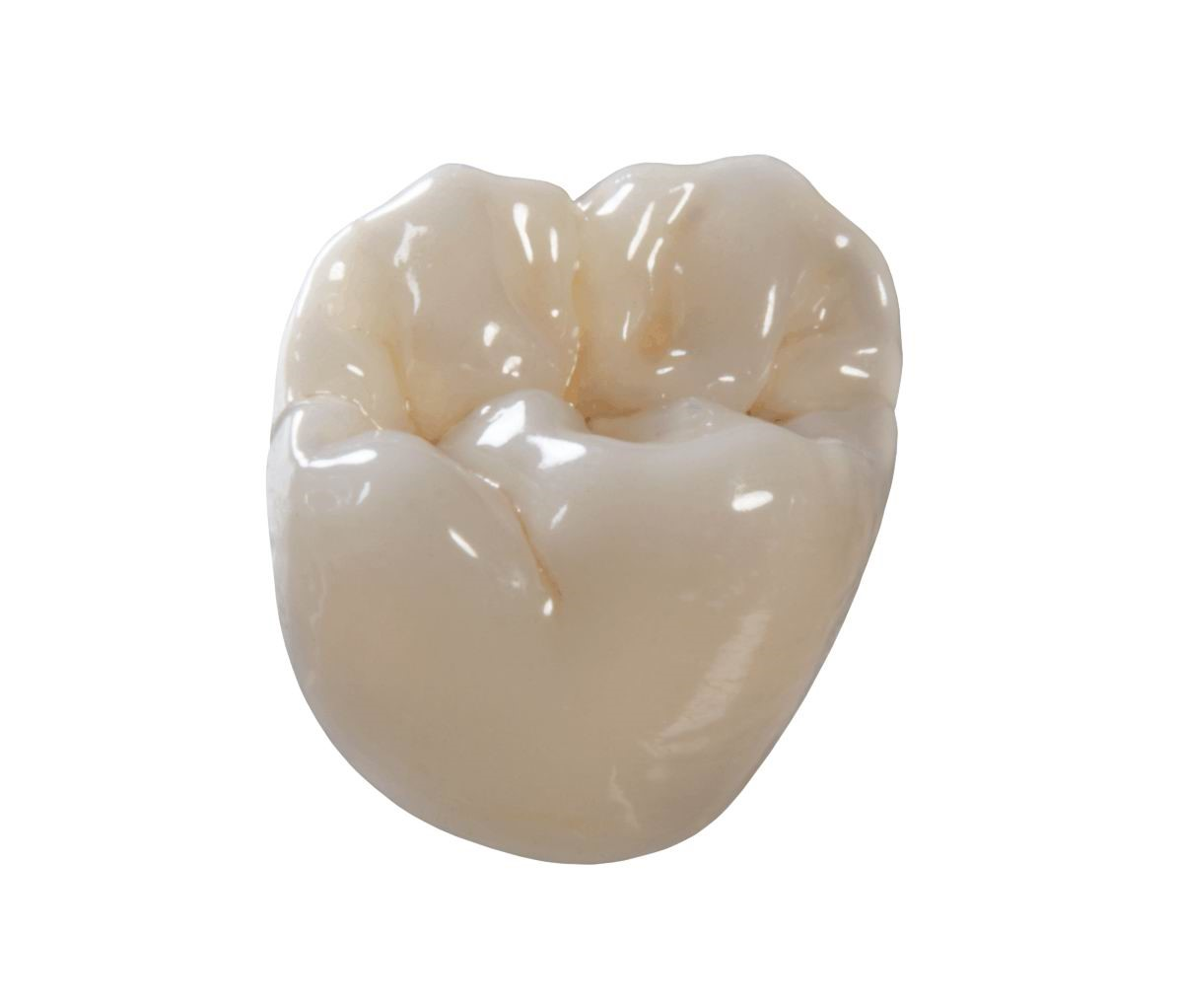 معایب و مزایای روکش کردن دندان