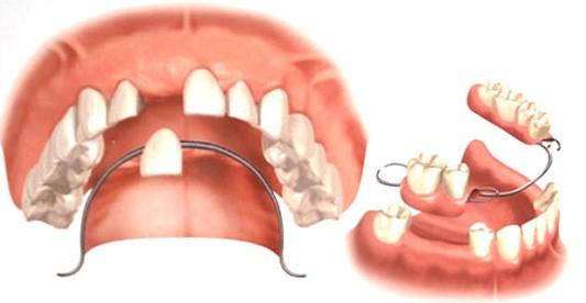 ایمپلنت دندان مصنوعی و بریج