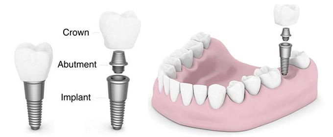 آمادگی های لازم برای جراحی کاشت ایمپلنت دندان
