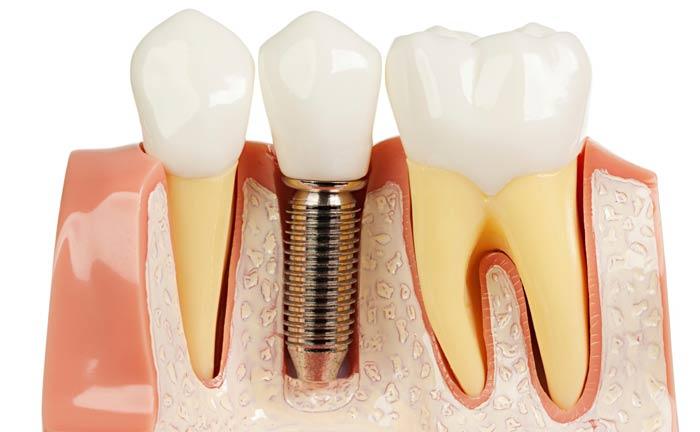 کاشت موفق ایمپلنت دندان در بلند مدت