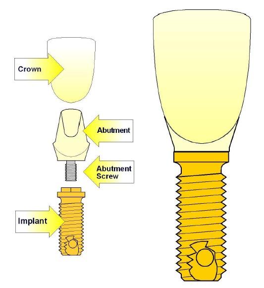 اجزاء ایمپلنتهای دندانی