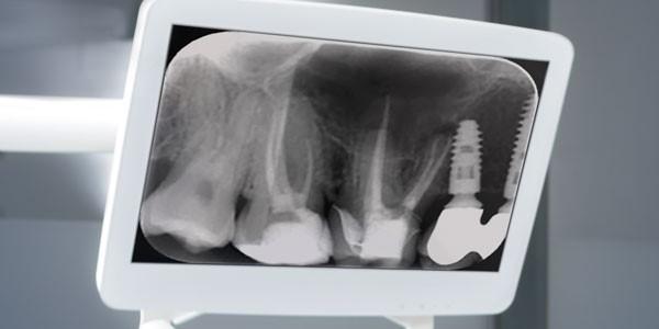 پیوند استخوان قبل از کاشت ایمپلنت