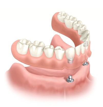 اباتمنت دو توپی محافظ دنچر کامل (ماتریکس مادِگی که در دنچر قابل دیدن میباشد)