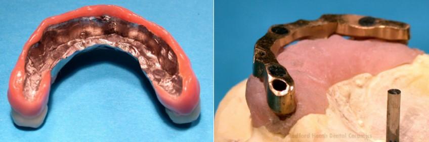 پروتز نگه داشته شده با آهنربا (سمت چپ) با یک ایمپلنت سوار شده روی بریج طلای سنتی (سمت راست)- آهنرباها درون میلهی قالب قرار داده میشوند