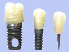 مینی ایمپلنت دندانی