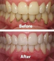 بوی بد دهان و ارتباط آن با روکش دندان