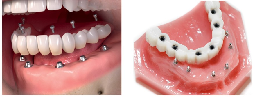 پروتزهای دندانی متحرک بر پایه ی ایمپلنت