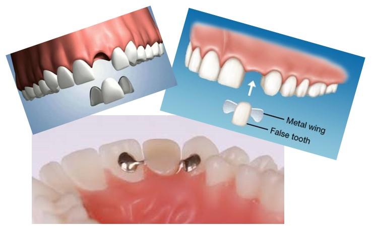 ایمپلنت دندانی یا بریج ؟