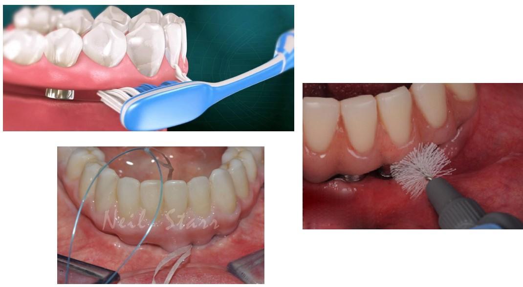 مراقبت از ایمپلنت های دندانی