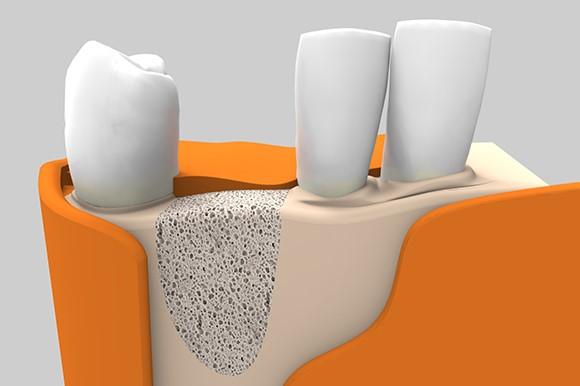 پیوند استخوان برای کاشت ایمپلنت دندان