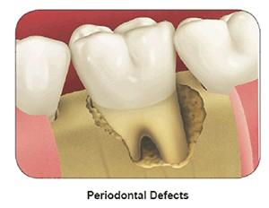 جراحی های بازسازی استخوان پیش از کاشت ایمپلنت دندان