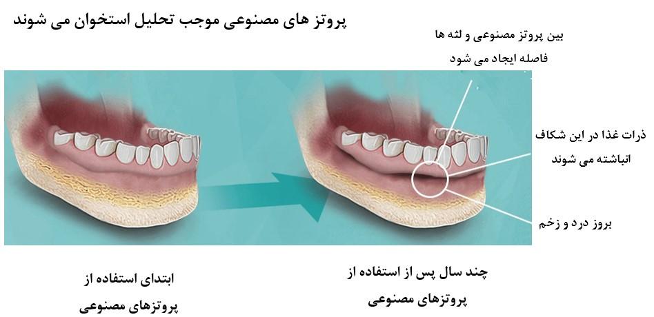 دیابت و دندان مصنوعی