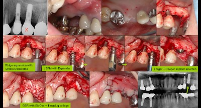 کاشت مجدد ایمپلنت دندانی