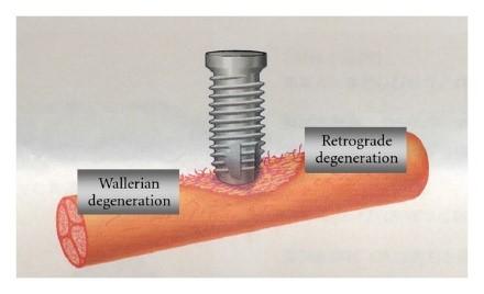 آسیب به عصب دندان طی کاشت ایمپلنت