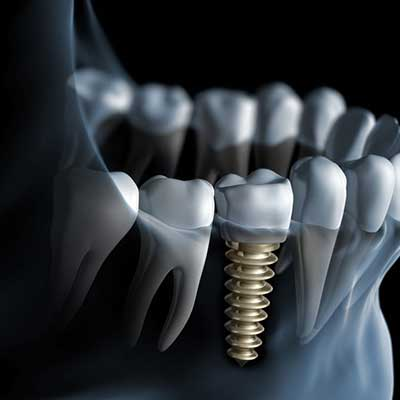 ایمپلنت دندان با فناوری نانوتکنولوژی