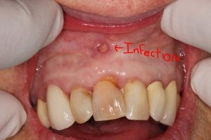 عفونت کانال ریشه دندان