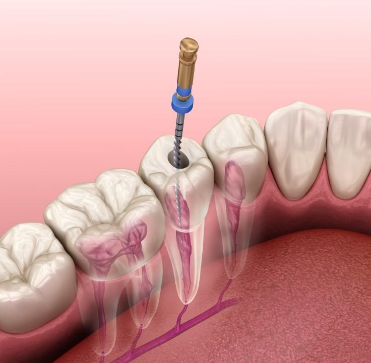عمر دندان عصب کشی شده
