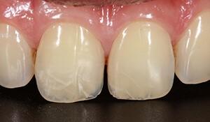 ترک دندان
