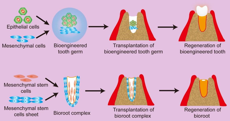 نقش سلول های بنیادی در درمان اندودانتیک