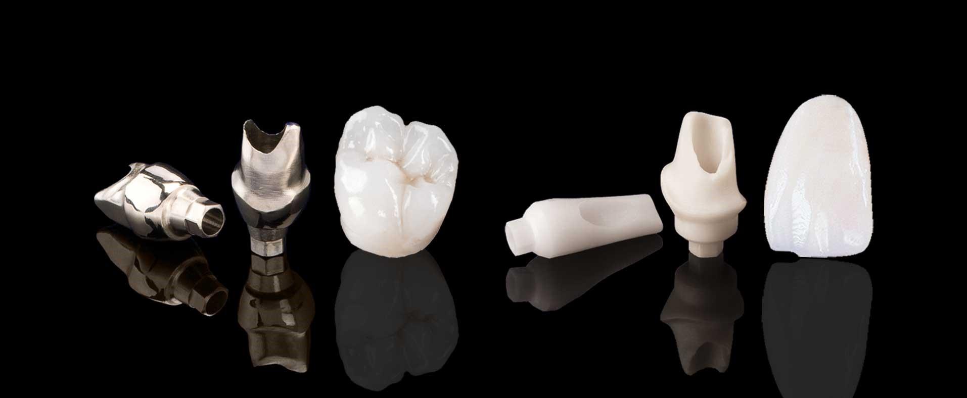 پروتزهای زیرکونیا برای درمان حساسیت و پوسیدگی دندان