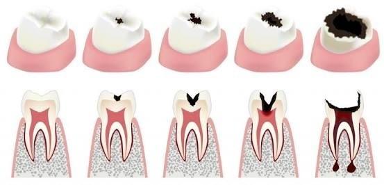 حساسیت پس از پر کردن دندان