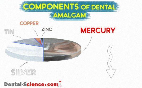 پرکردن دندان با آمالگام دندانی