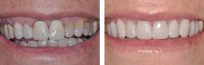 درمان تغییر رنگ دندان