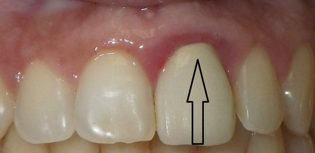 درد اطراف روکش های دندانی