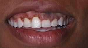 لیفت لثه یا افزایش طول تاج دندان