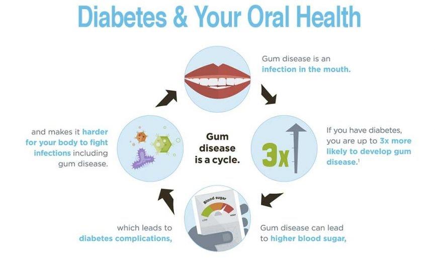 دندان پزشکی بیماران دیابتیک